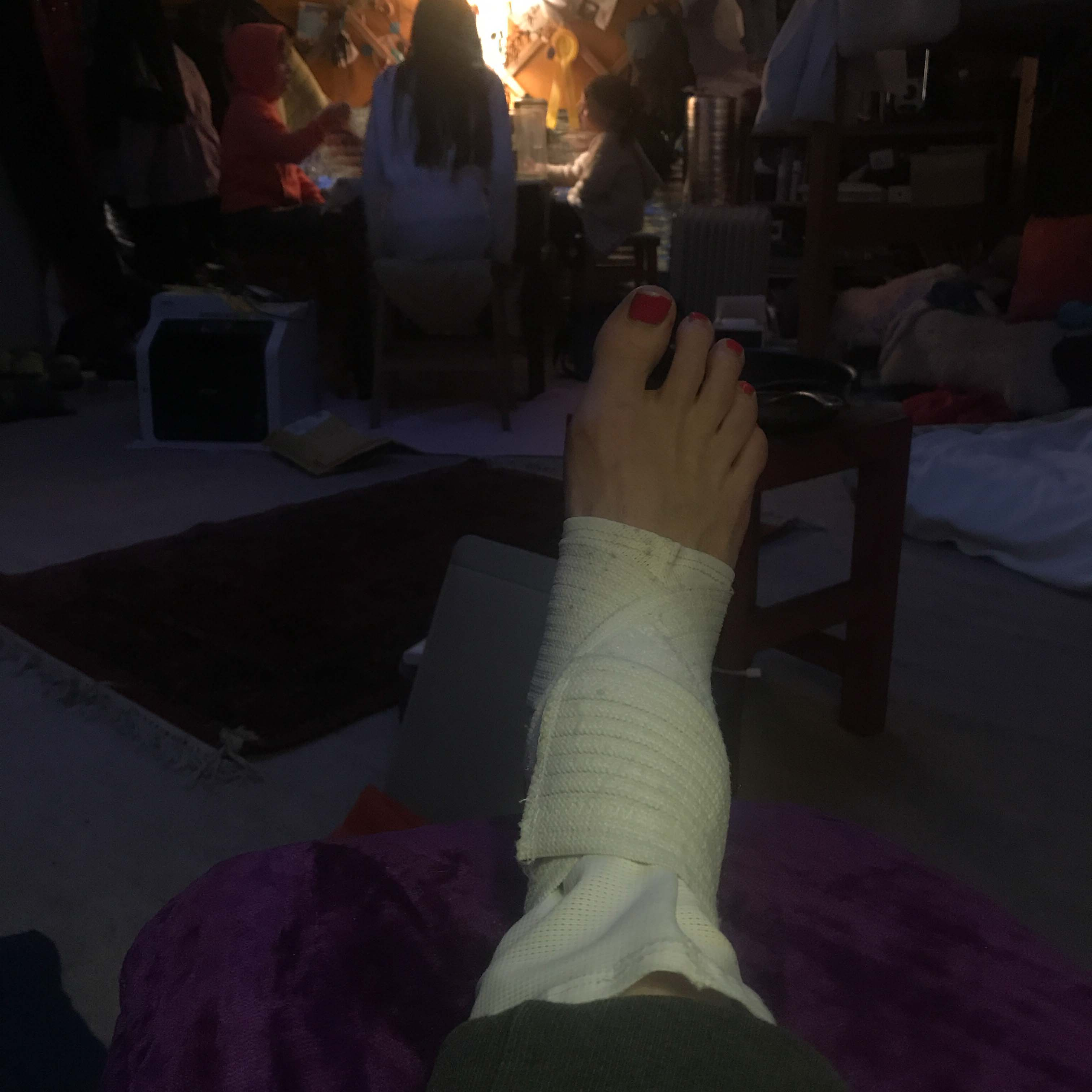 buggered ankle